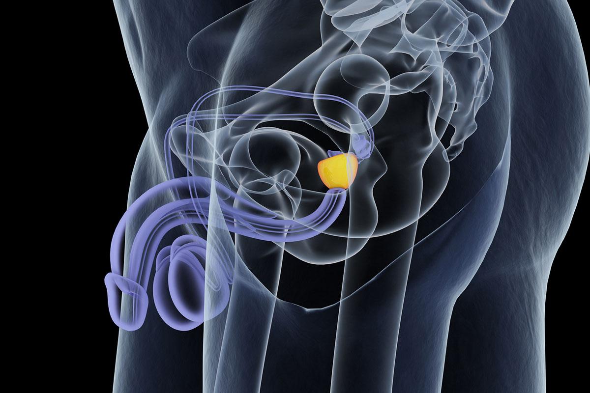 aldo-bocciardi-miglior-urologo-milano-metodo-bocciarci-cura-tumore-prostata-